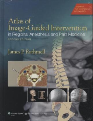 Atlas of Image-Guided Intervention in Pain Medicine