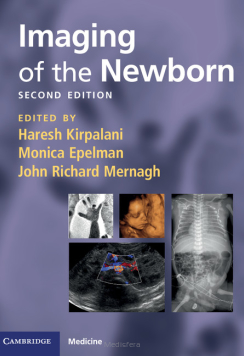 Imaging of the Newborn